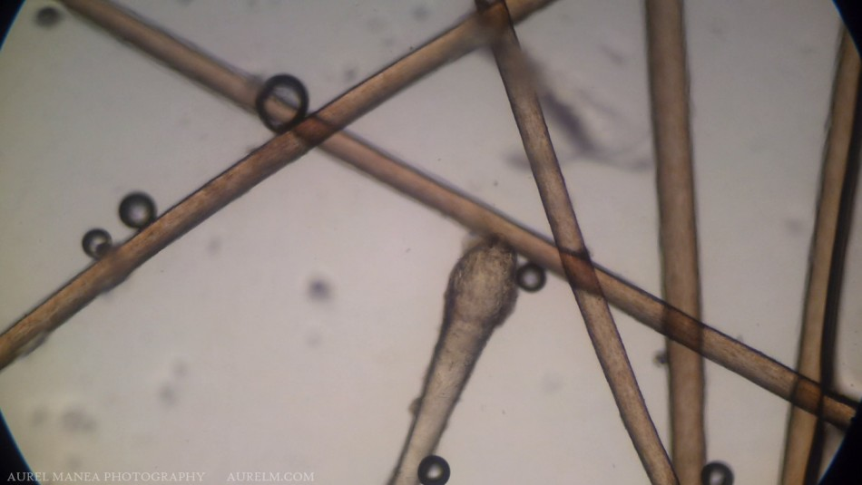 hair-under-microscope-with-DIY-adapter-01